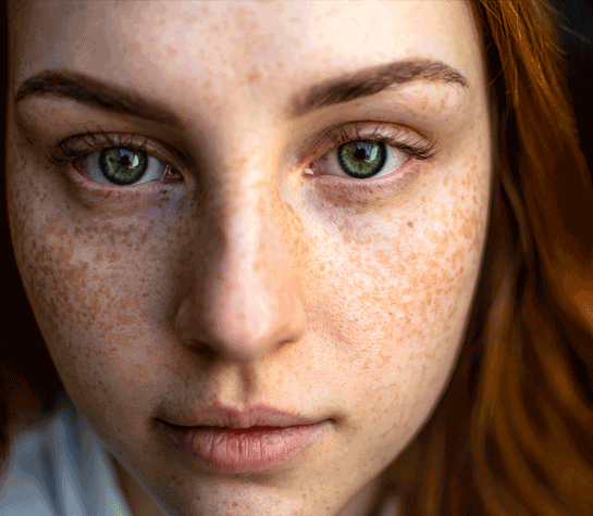 What-does-your-skin-tell-about-your-health